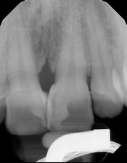 8 Post-operative radiograph. Note the resultant contours from the matrices, as well as the palatal volume at #8 due to the unusual positioning of the teeth.
